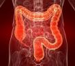Chaga a rakovina tlustého střeva