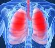 Coriolus versicolor a rakovina plic