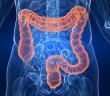 Reishi omezuje růst rakoviny tlustého střeva