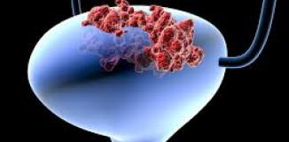 Polyporus a rakovina močového měchýře